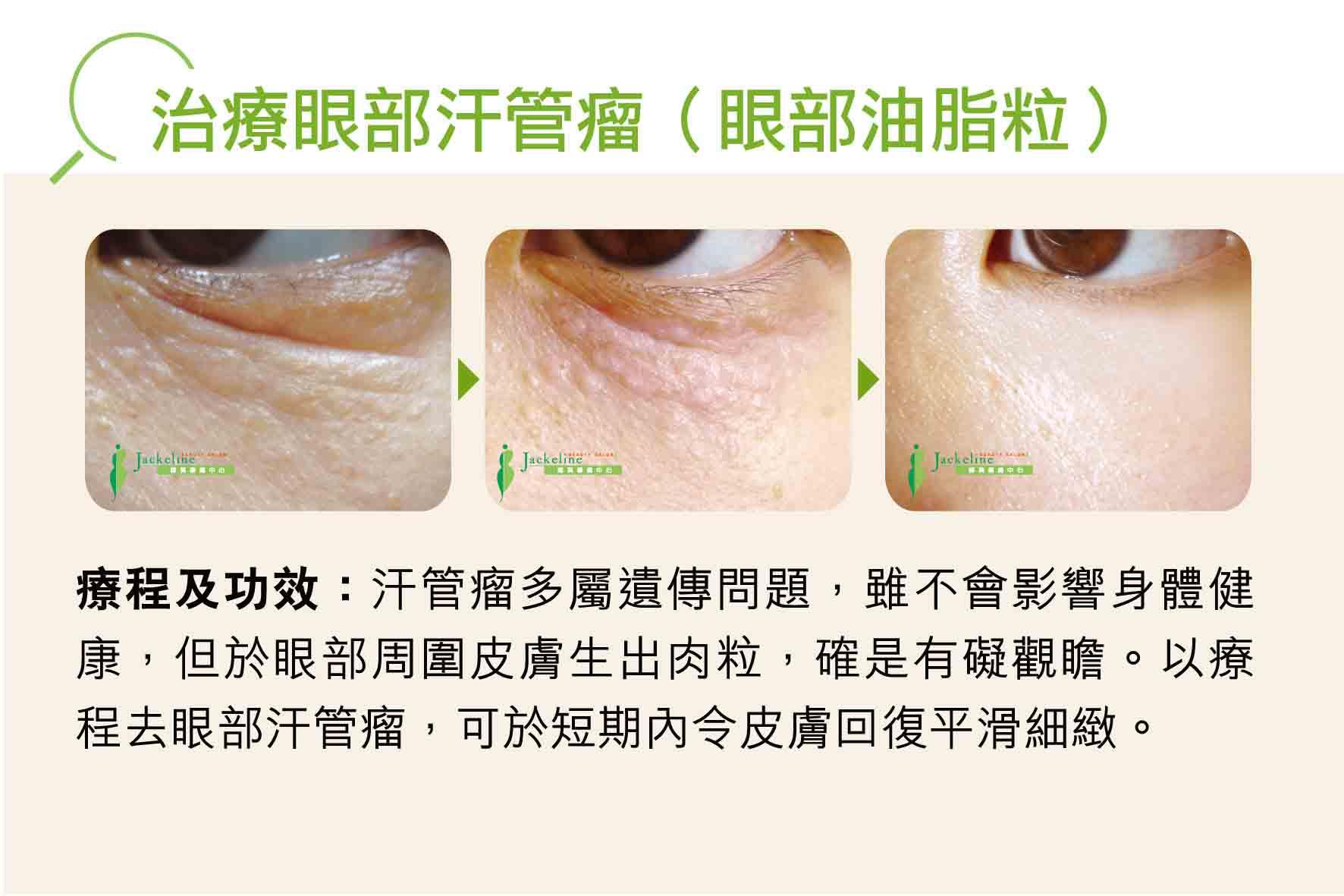 治療眼部汗管瘤(眼部油脂粒)