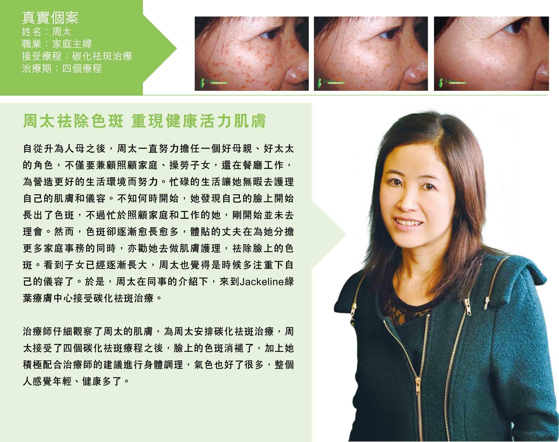 碳化祛斑治療治療1